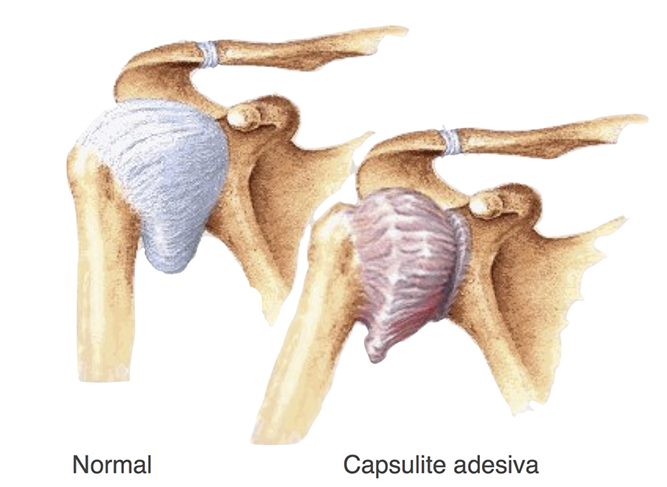capsulite adesiva do ombro